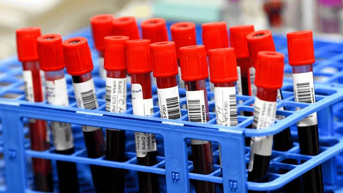 biophama blood sample